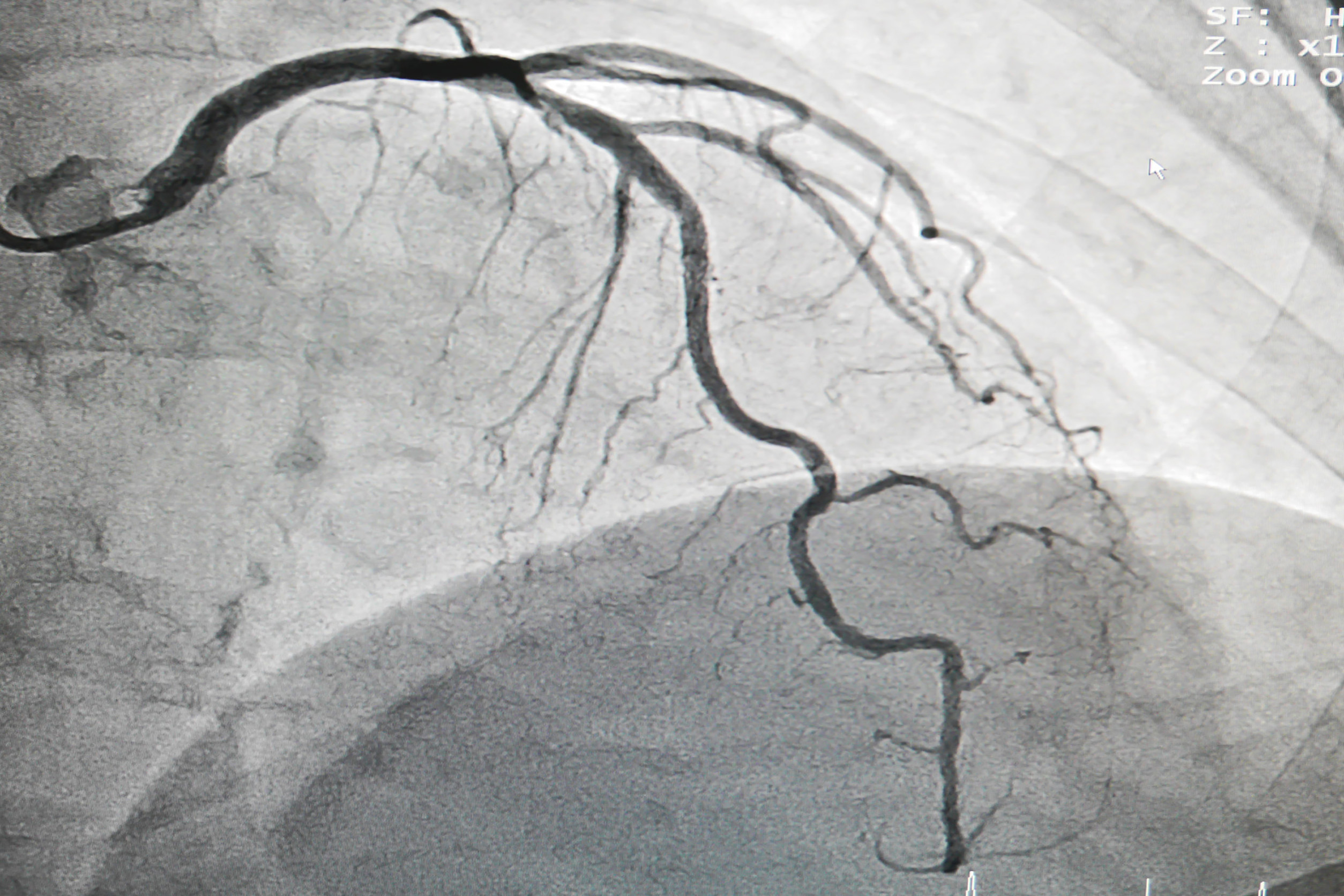 Can FFR be derived from angiography reliably?