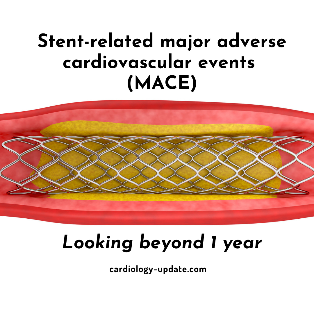 Very late stent-related events may occur in 50% of patients
